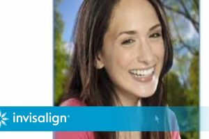 Is Invisalign Right for Your Teen?