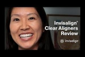 Invisalign Clear Braces Review
