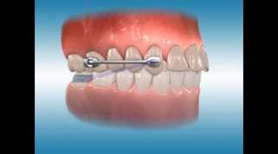 Carriere® Motion™ with Lingual Arch as source of Anchorage