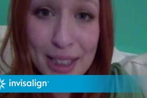 An Invisalign Clear Aligners Story: Starting Treatment