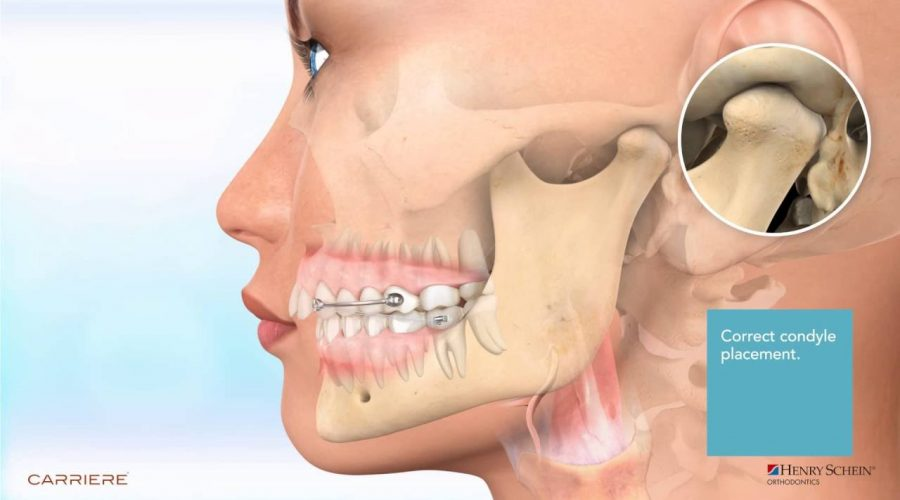 Carriere® Motion™ Appliance for Class II Patient Education Animation 2