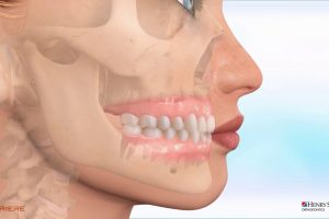 Carriere® Clear Motion™ Class II Appliance – Maxillary hypoplasia