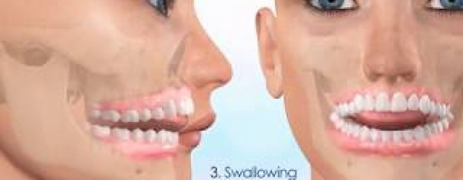 Open Bite Correction with Motion 3D Clear and Aligners