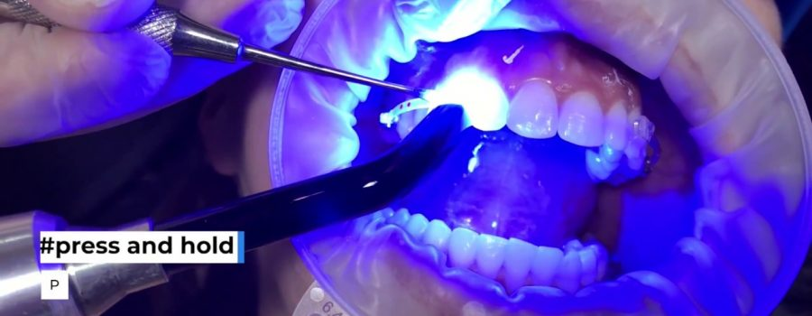 Carriere MOTION 3D CLEAR Class II Bonding | Dr Paquette & Henry Schein Orthodontics