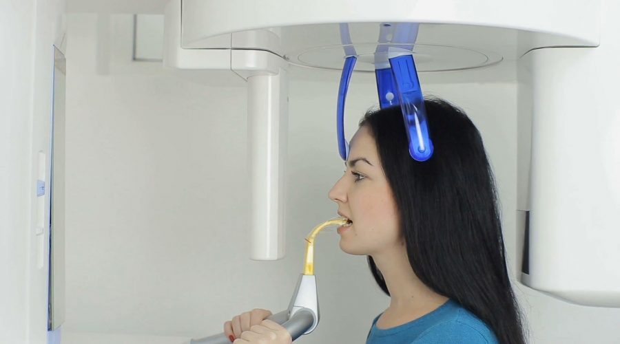 What's a CBCT? Why is it needed for dental implants?