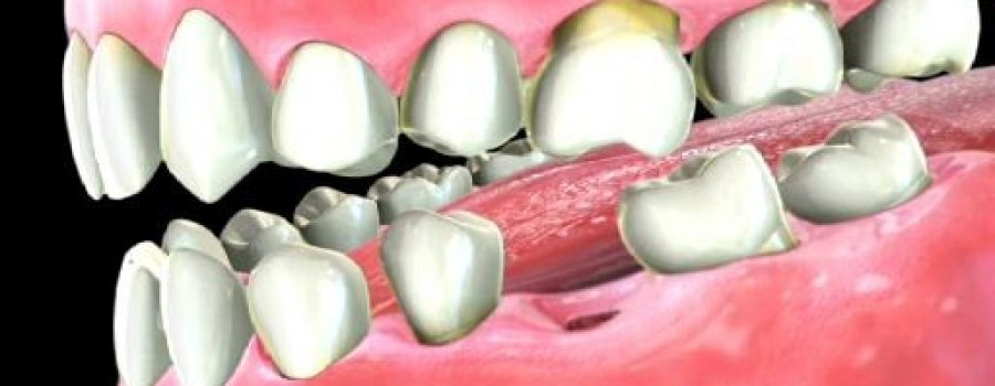 What are some alternatives to having a root canal dental procedure?